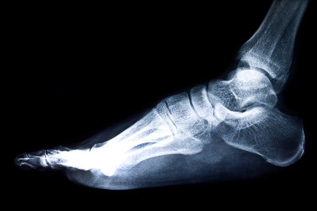 Is ankle replacement right for you?