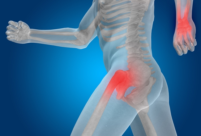 Easing the pain of osteoarthritis