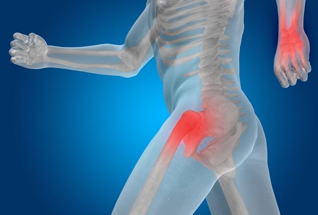 Easing the pain of osteoarthritis
