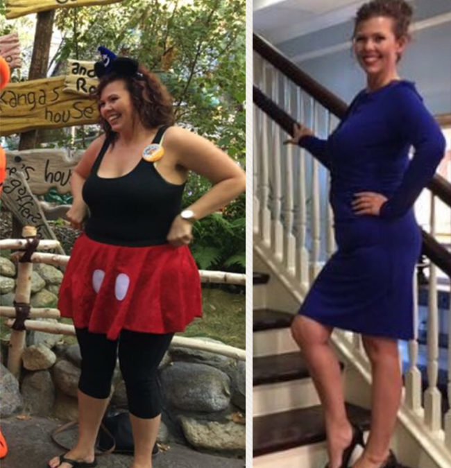 Bariatric surgery: A tool to help reach my goals