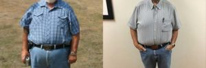 Bariatric surgery: A tool for achieving overall health